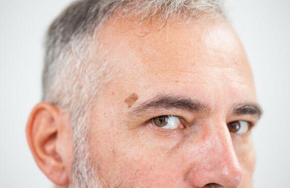 Brown (pigmented) birthmarks, freckles