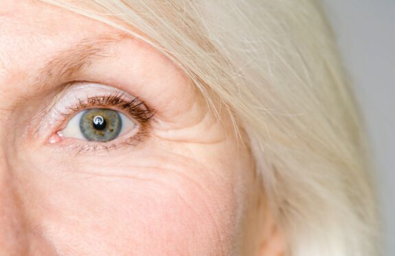 Wrinkle resurfacing